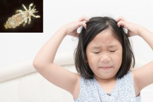How to Use Diatomaceous Earth for Head Lice