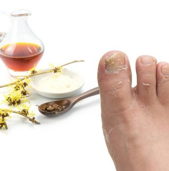Witch Hazel for Athlete's Foot - How to Use and Safety Information