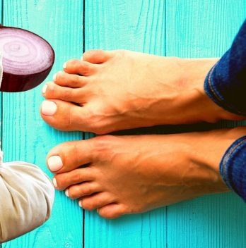 Can You Use Onion Poultice on Feet