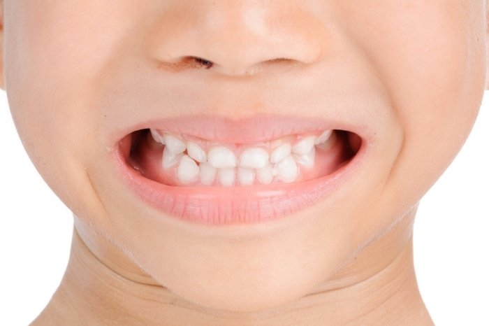 Whiter And Brighter Tooth