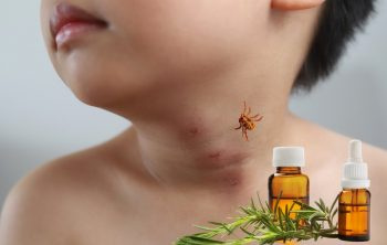 The Best Essential Oils For Chigger Bites